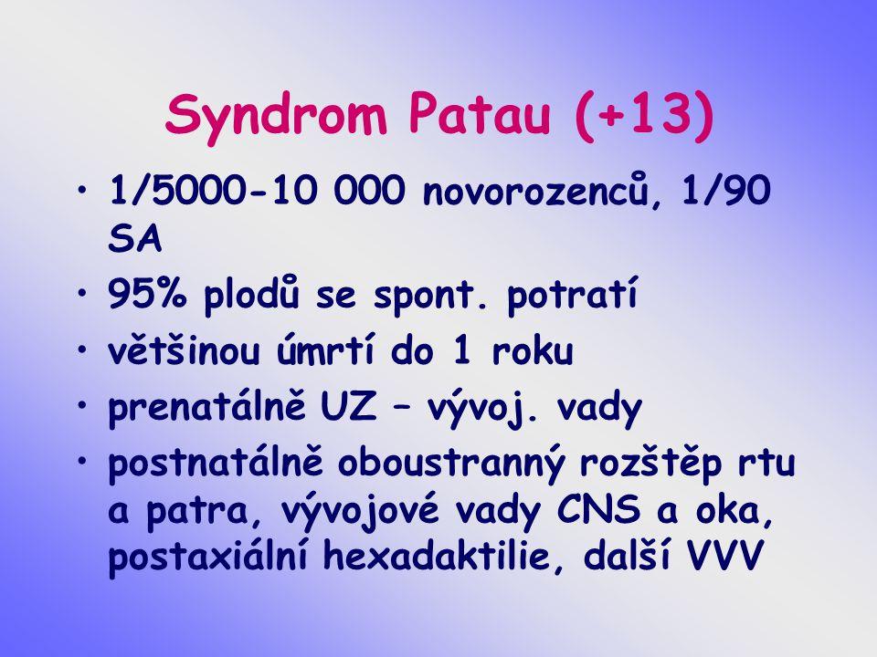 Syndrom Patau (+13) 1/5000-10 000 novorozenců, 1/90 SA