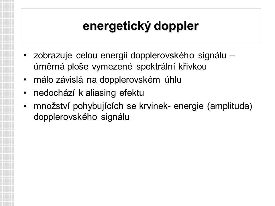 energetický doppler zobrazuje celou energii dopplerovského signálu – úměrná ploše vymezené spektrální křivkou.