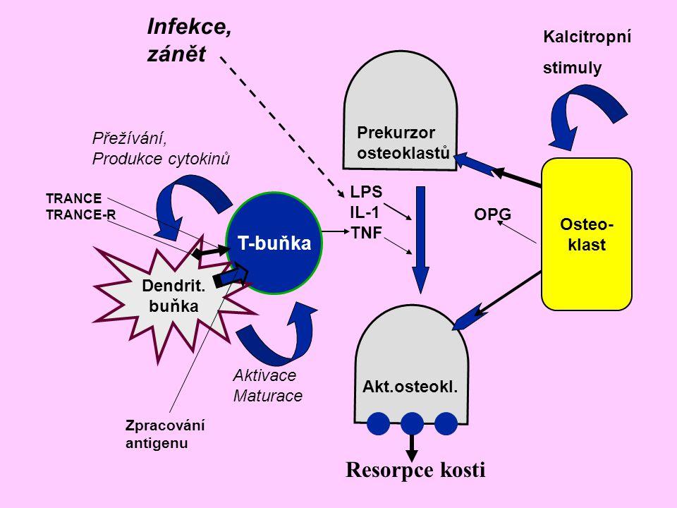 Infekce, zánět Resorpce kosti T-buňka Kalcitropní stimuly Prekurzor