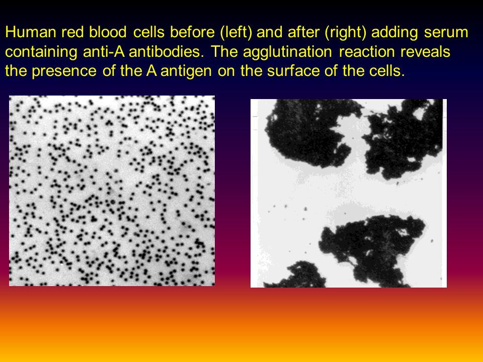 Human red blood cells before (left) and after (right) adding serum containing anti-A antibodies. The agglutination reaction reveals the presence of the A antigen on the surface of the cells.