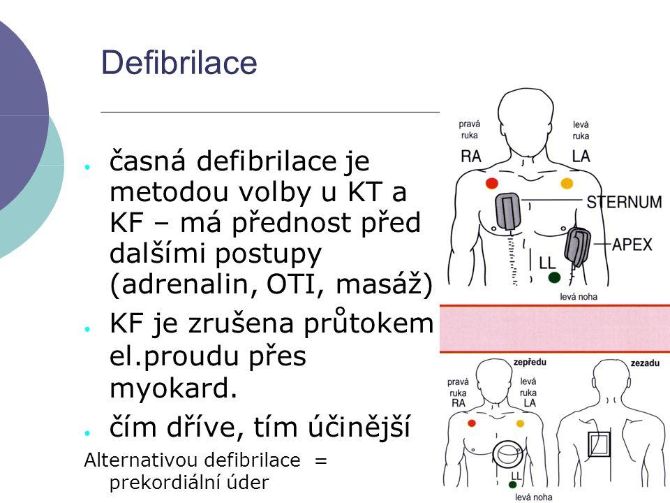Defibrilace časná defibrilace je metodou volby u KT a KF – má přednost před dalšími postupy (adrenalin, OTI, masáž)