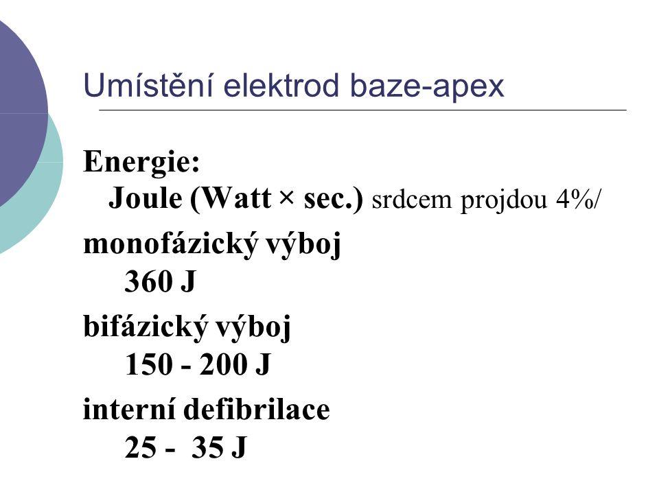 Umístění elektrod baze-apex