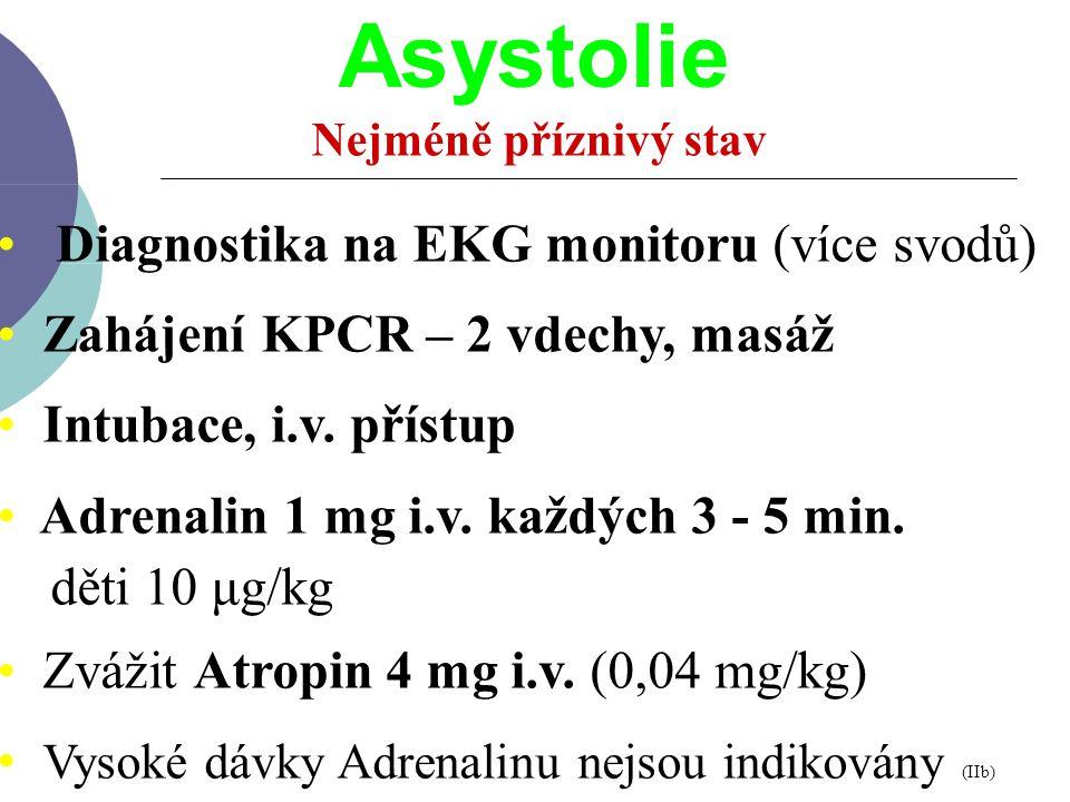 Asystolie Diagnostika na EKG monitoru (více svodů)