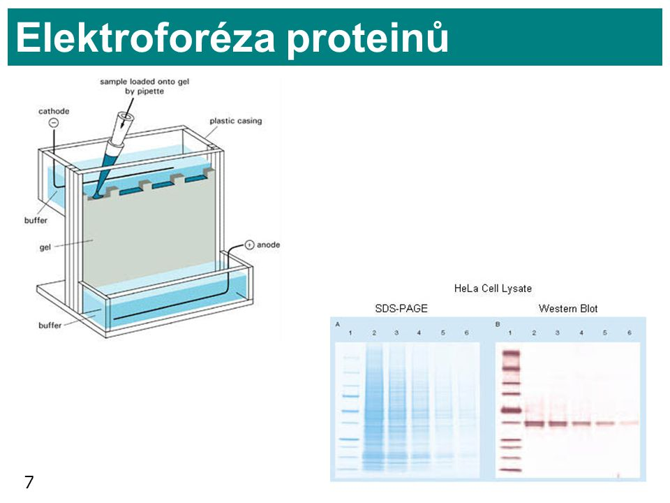 Elektroforéza proteinů