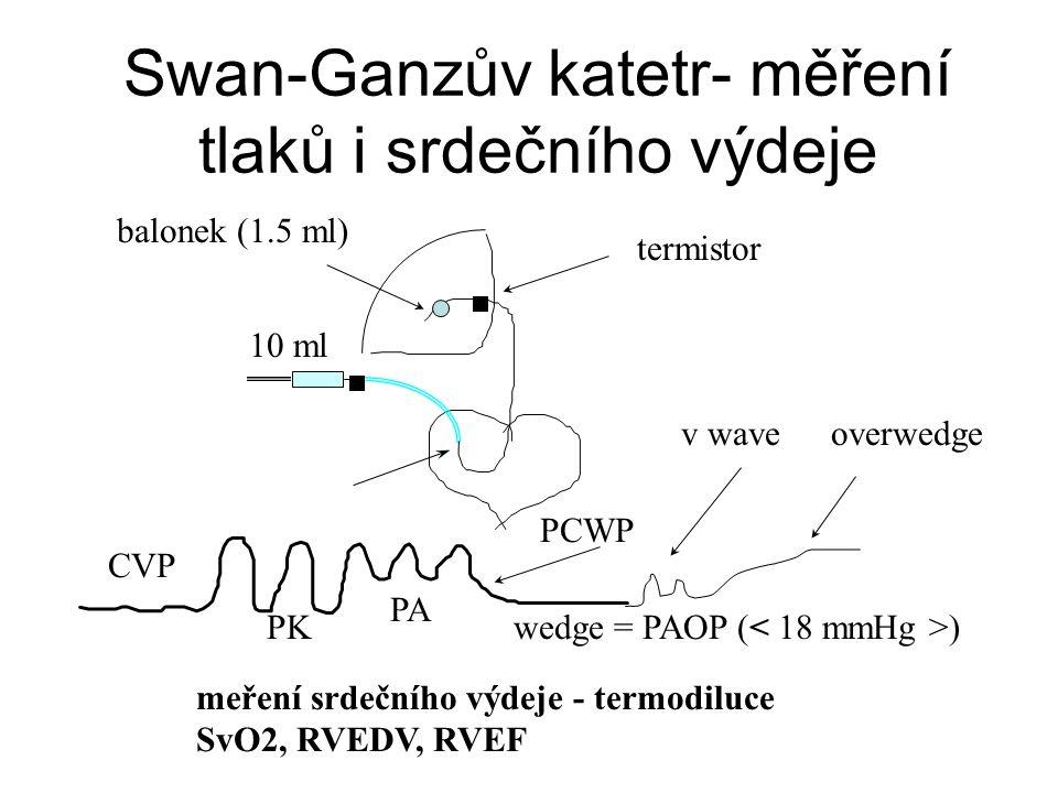 Swan-Ganzův katetr- měření tlaků i srdečního výdeje