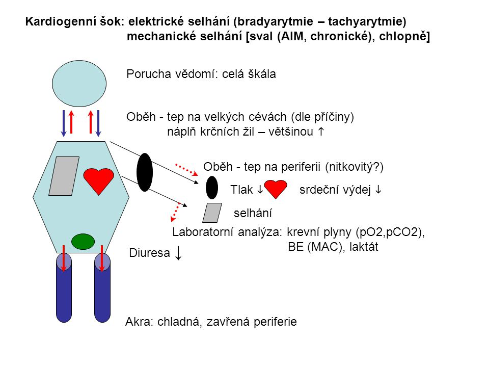 Kardiogenní šok: elektrické selhání (bradyarytmie – tachyarytmie)