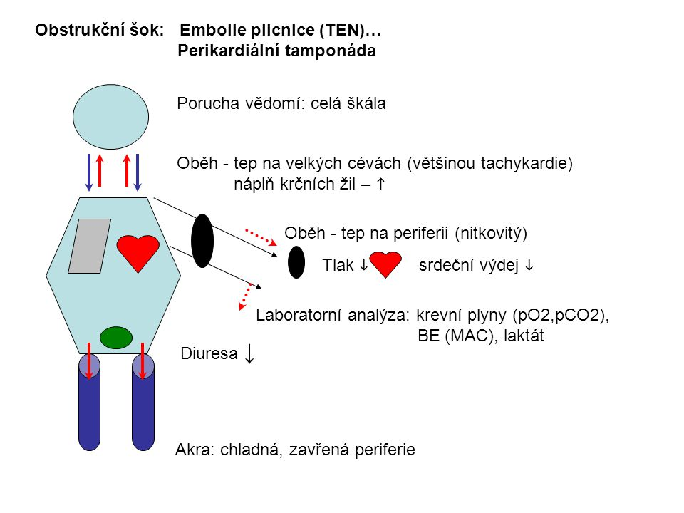 Obstrukční šok: Embolie plicnice (TEN)…