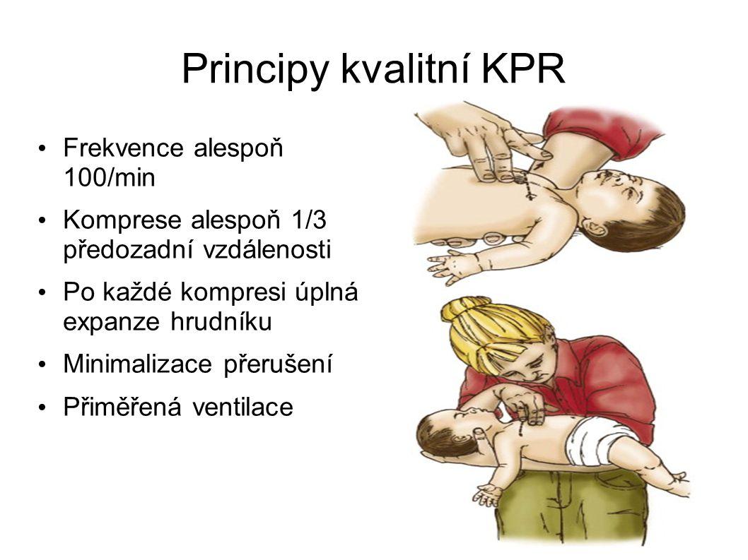 Principy kvalitní KPR Frekvence alespoň 100/min