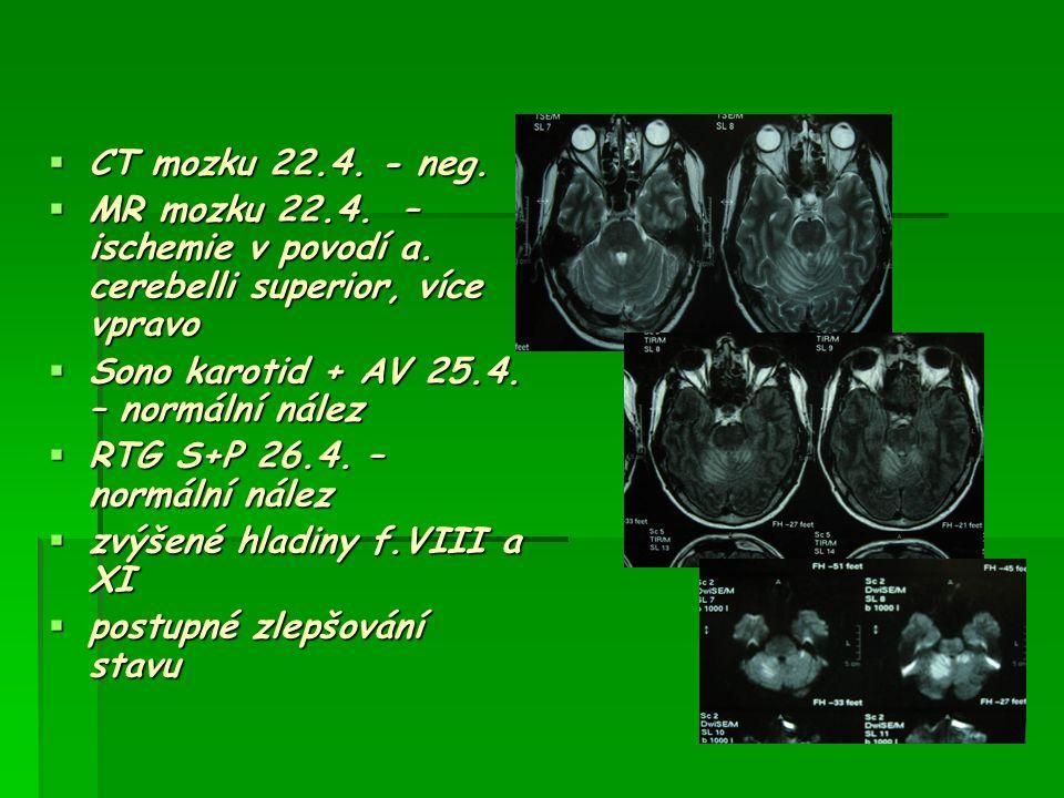 CT mozku 22.4. - neg. MR mozku 22.4. – ischemie v povodí a. cerebelli superior, více vpravo. Sono karotid + AV 25.4. – normální nález.