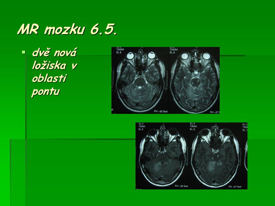 MR mozku 6.5. dvě nová ložiska v oblasti pontu