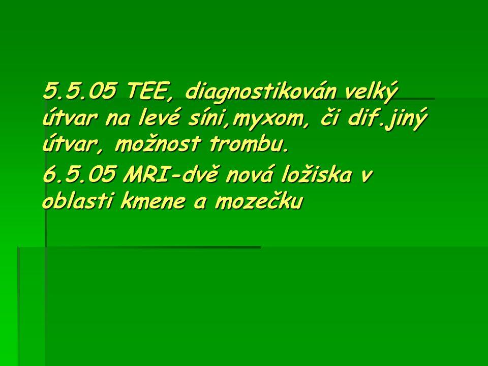 5. 5. 05 TEE, diagnostikován velký útvar na levé síni,myxom, či dif