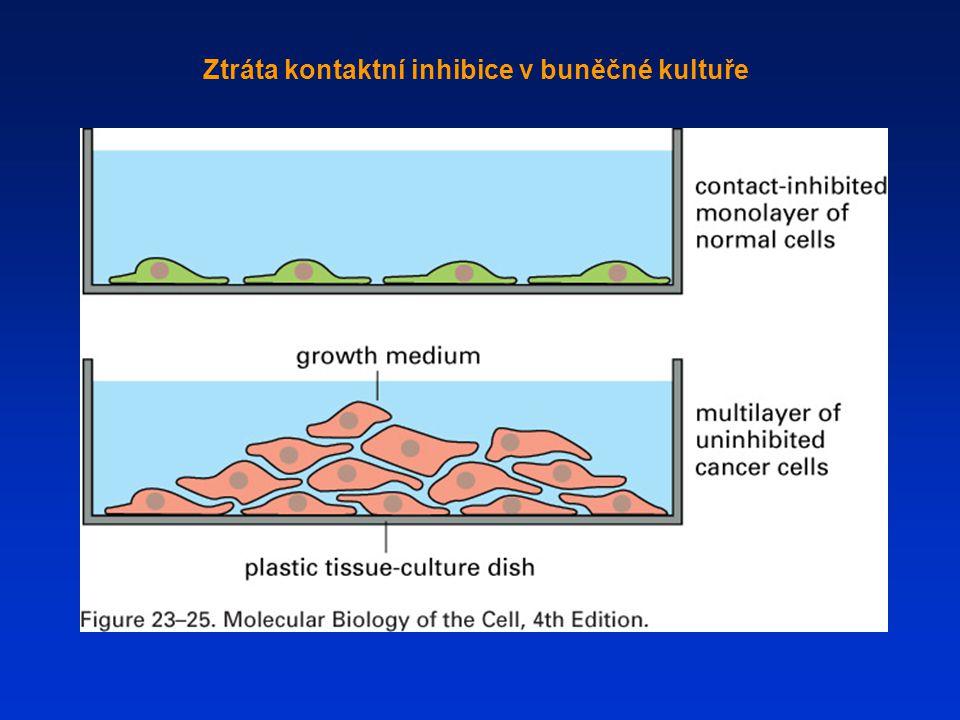 Ztráta kontaktní inhibice v buněčné kultuře