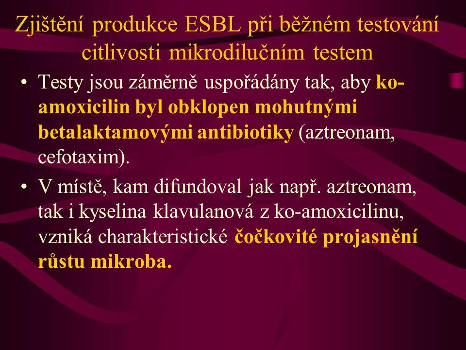 Zjištění produkce ESBL při běžném testování citlivosti mikrodilučním testem