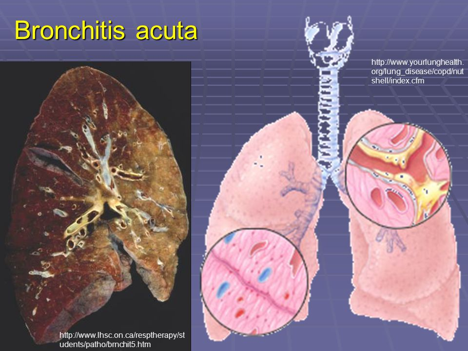 Bronchitis acuta http://www.yourlunghealth.org/lung_disease/copd/nutshell/index.cfm.
