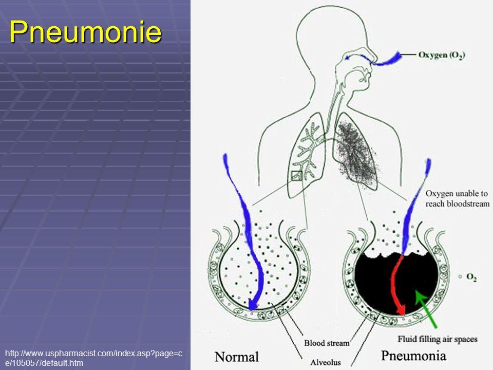 Pneumonie http://www.uspharmacist.com/index.asp page=ce/105057/default.htm