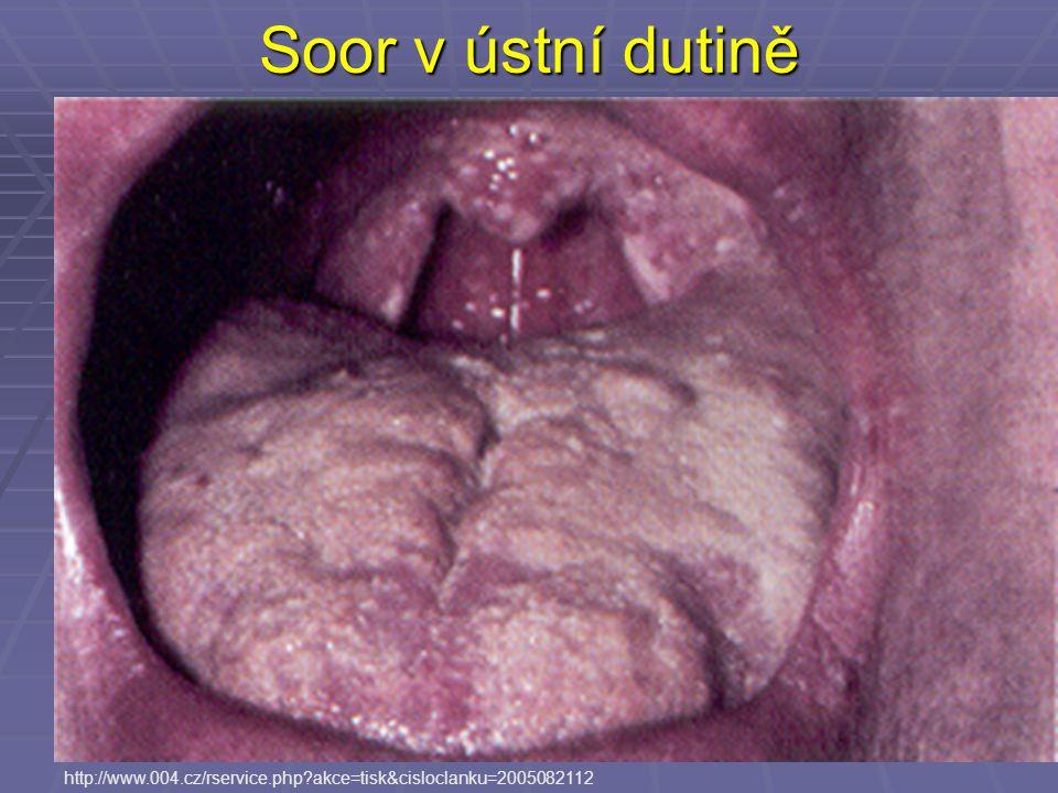 Soor v ústní dutině http://www.004.cz/rservice.php akce=tisk&cisloclanku=2005082112