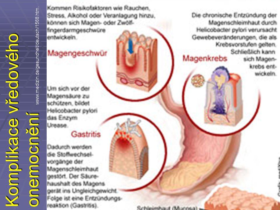 Komplikace vředového onemocnění