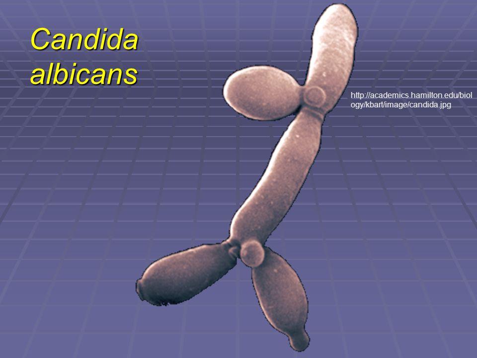 Candida albicans http://academics.hamilton.edu/biology/kbart/image/candida.jpg