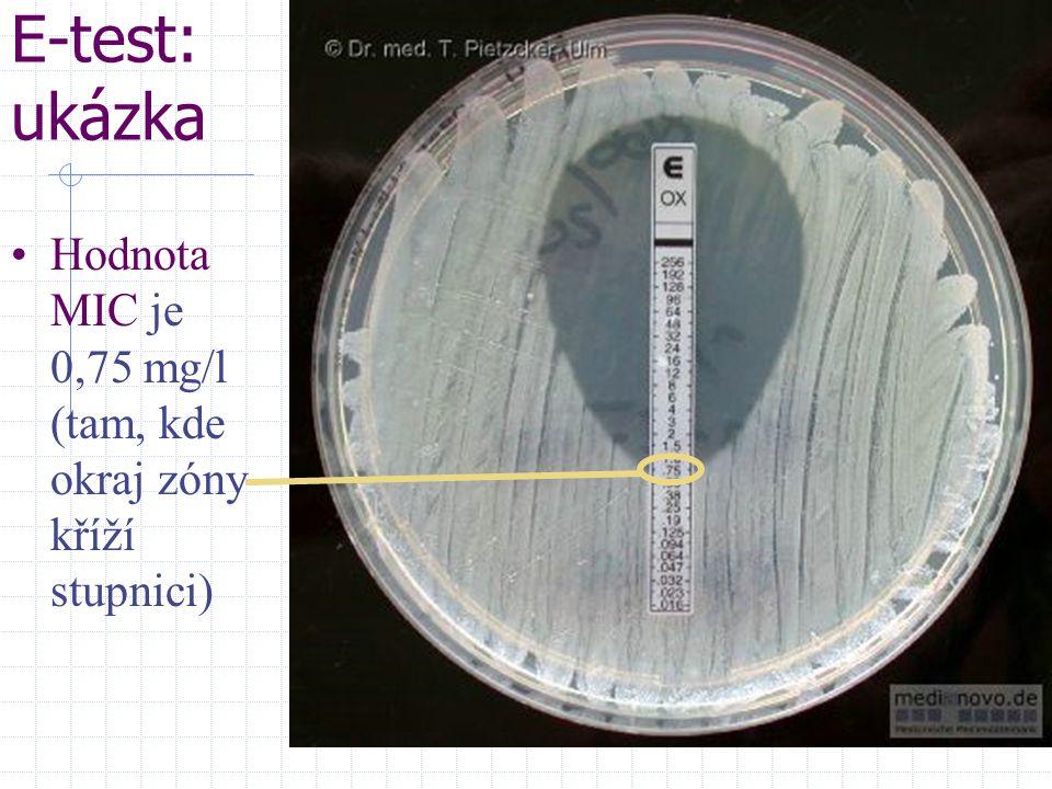 E-test: ukázka Hodnota MIC je 0,75 mg/l (tam, kde okraj zóny kříží stupnici)