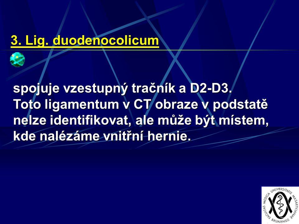 3. Lig. duodenocolicum spojuje vzestupný tračník a D2-D3.