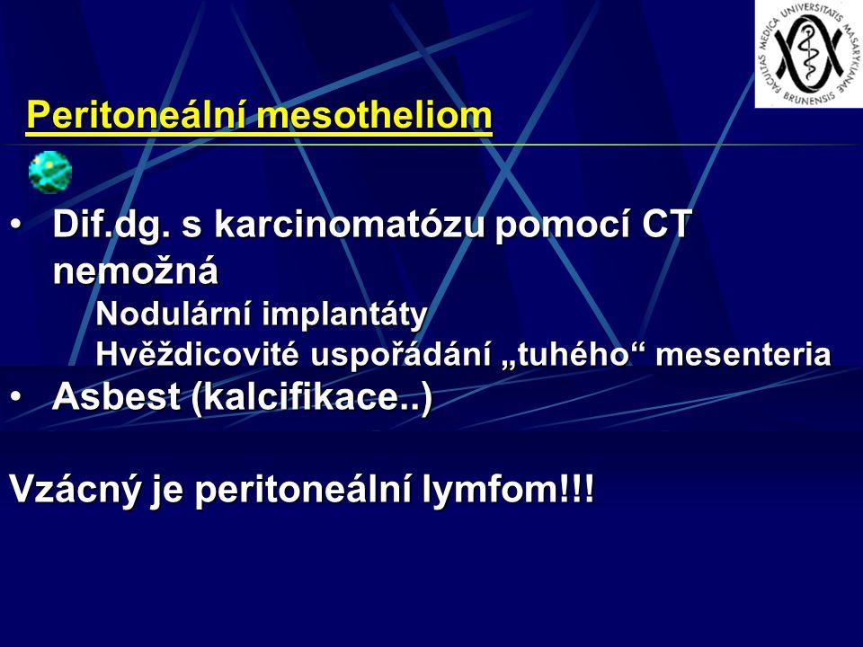 Peritoneální mesotheliom