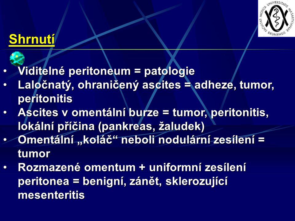 Shrnutí Viditelné peritoneum = patologie