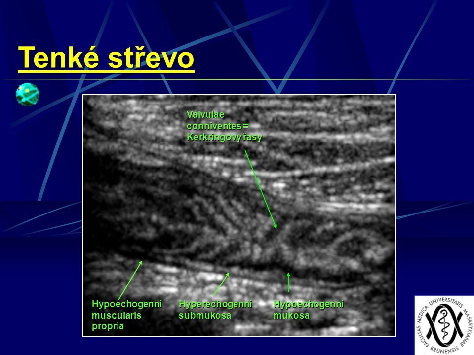 Tenké střevo Valvulae conniventes = Kerkringovy řasy