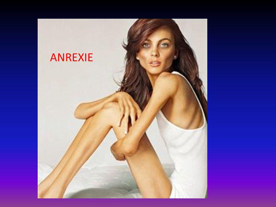 ANREXIE