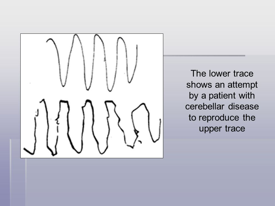 The lower trace shows an attempt by a patient with cerebellar disease to reproduce the upper trace