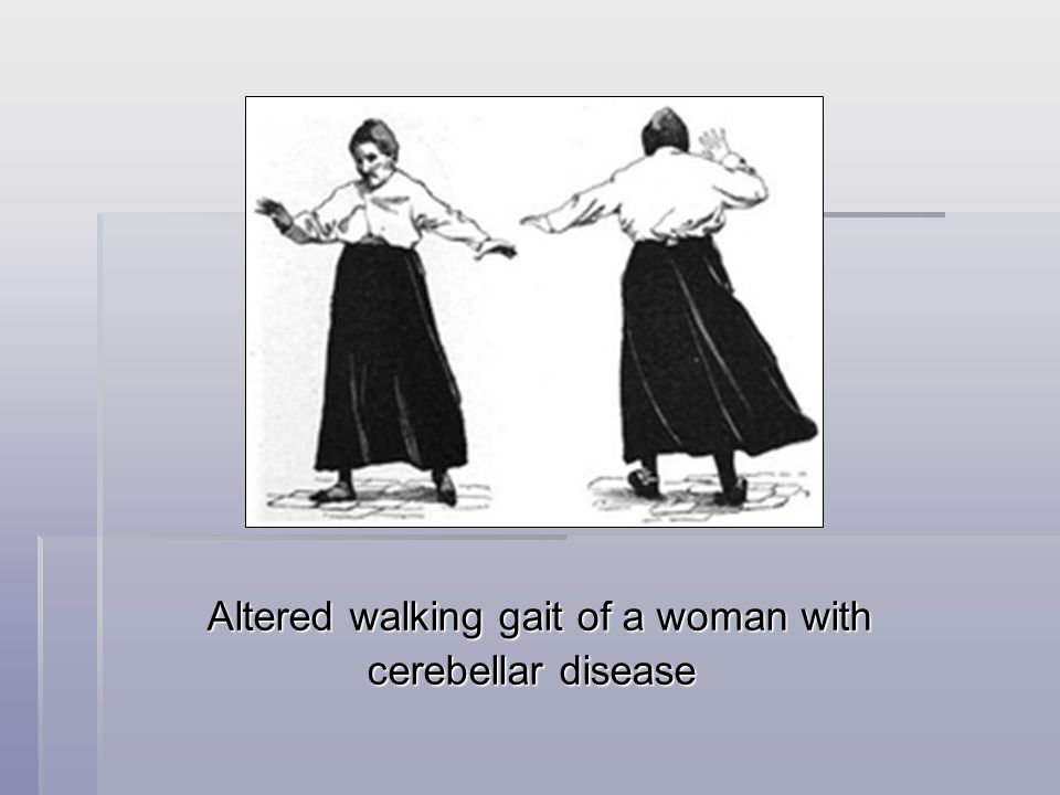 Altered walking gait of a woman with