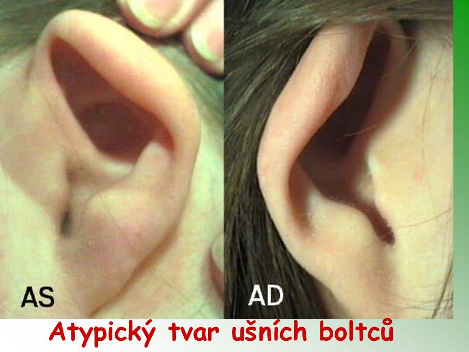 Atypický tvar ušních boltců