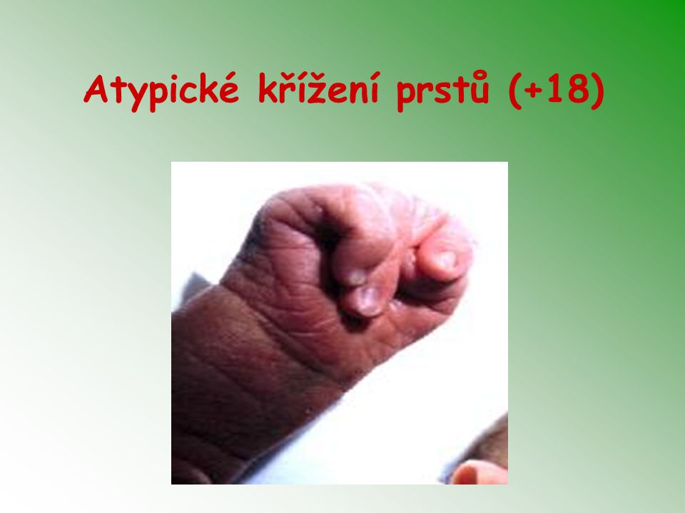 Atypické křížení prstů (+18)