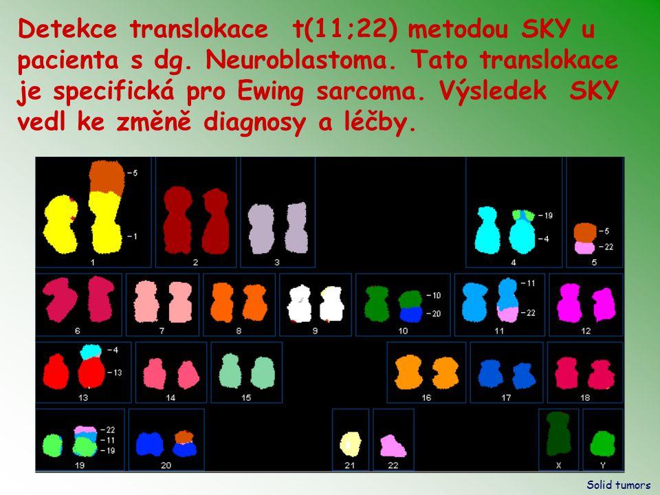 Detekce translokace t(11;22) metodou SKY u pacienta s dg. Neuroblastoma. Tato translokace je specifická pro Ewing sarcoma. Výsledek SKY vedl ke změně diagnosy a léčby.