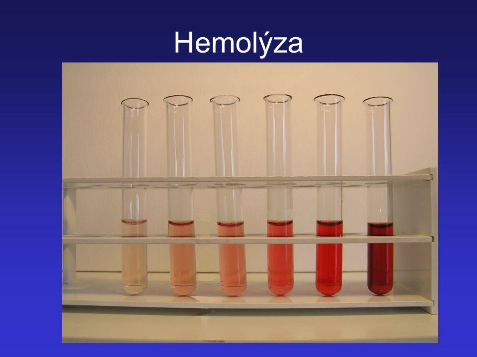 Hemolýza