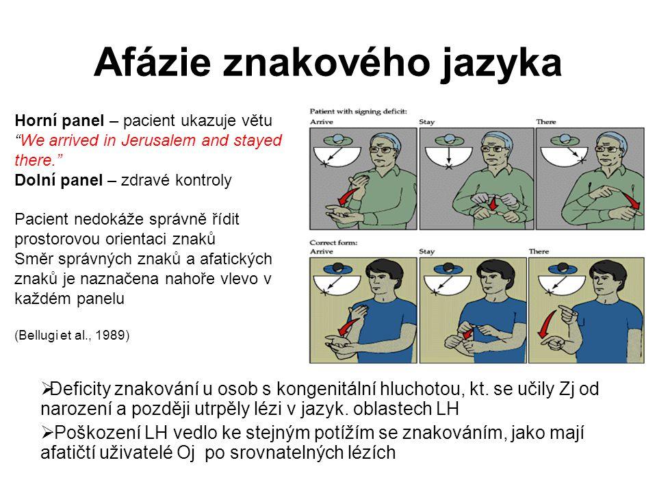Afázie znakového jazyka