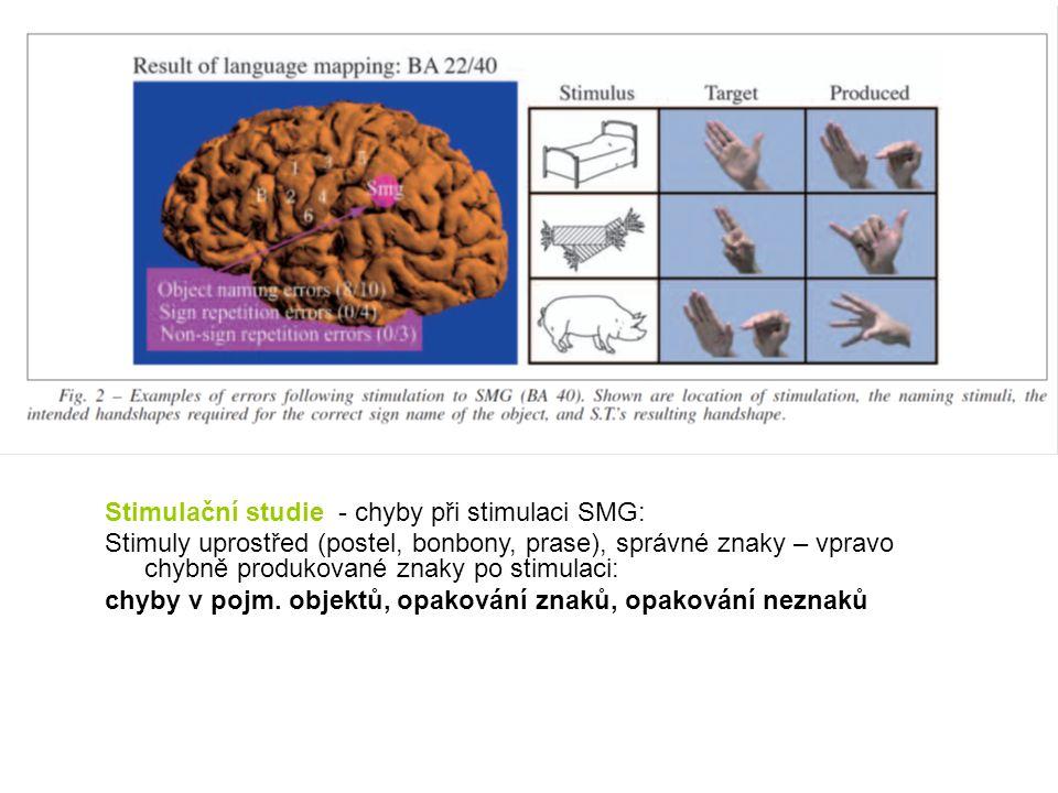 Stimulační studie - chyby při stimulaci SMG: