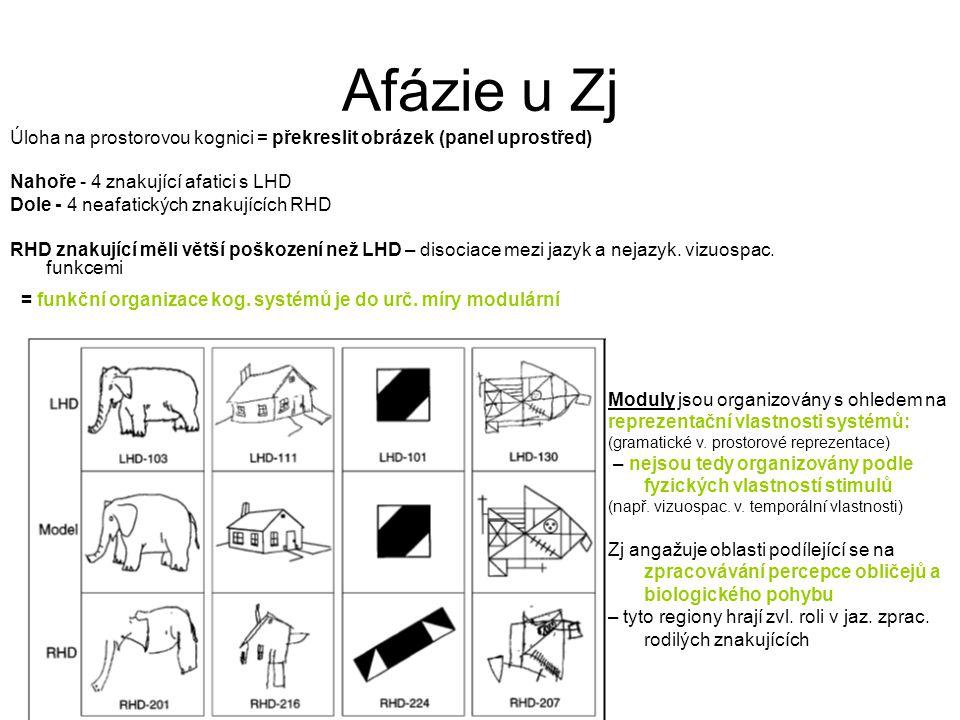 Afázie u Zj Úloha na prostorovou kognici = překreslit obrázek (panel uprostřed) Nahoře - 4 znakující afatici s LHD.