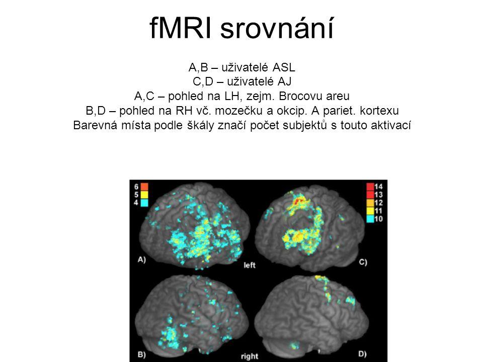 fMRI srovnání A,B – uživatelé ASL C,D – uživatelé AJ A,C – pohled na LH, zejm.