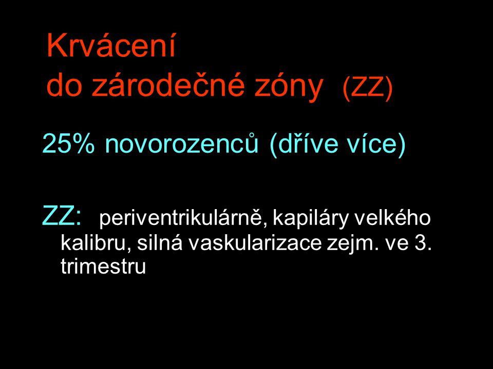 Krvácení do zárodečné zóny (ZZ)