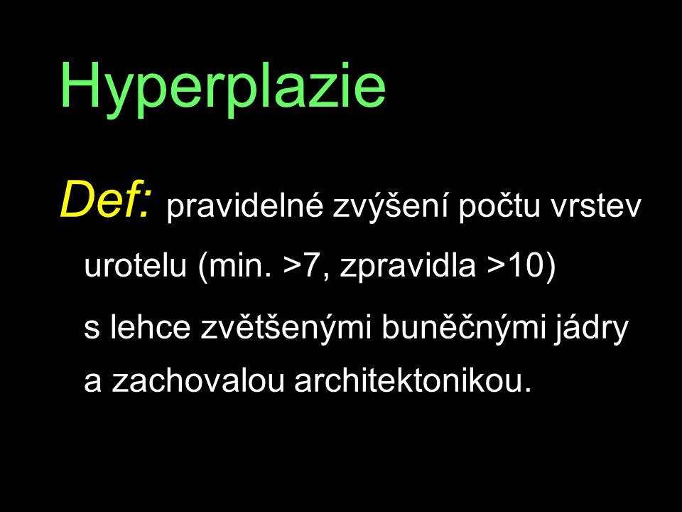 Hyperplazie Def: pravidelné zvýšení počtu vrstev urotelu (min.
