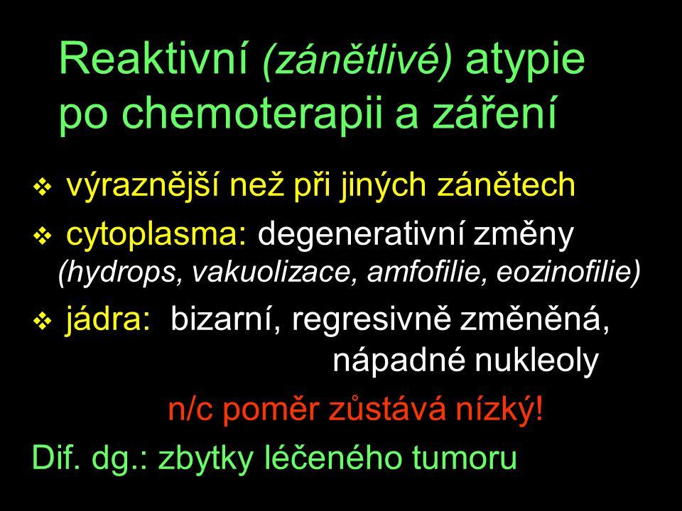 Reaktivní (zánětlivé) atypie po chemoterapii a záření