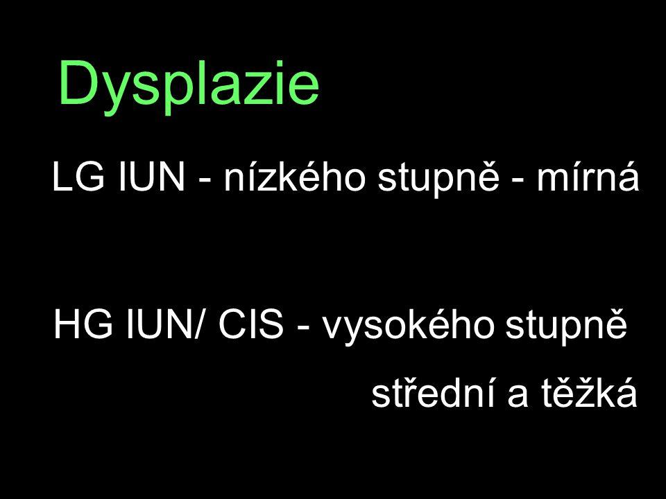 Dysplazie HG IUN/ CIS - vysokého stupně střední a těžká