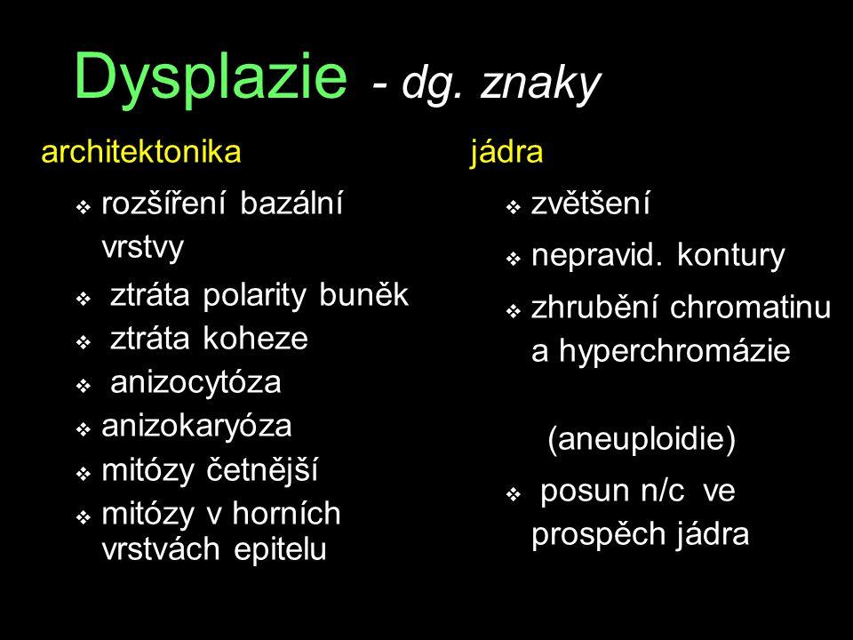 Dysplazie - dg. znaky architektonika rozšíření bazální vrstvy