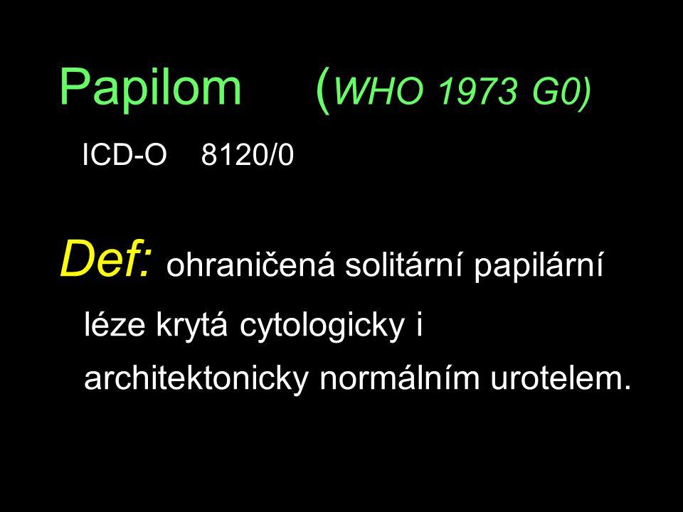Papilom (WHO 1973 G0) ICD-O 8120/0.