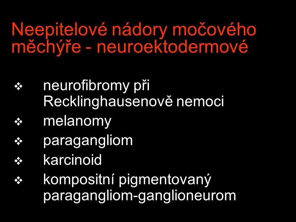 Neepitelové nádory močového měchýře - neuroektodermové