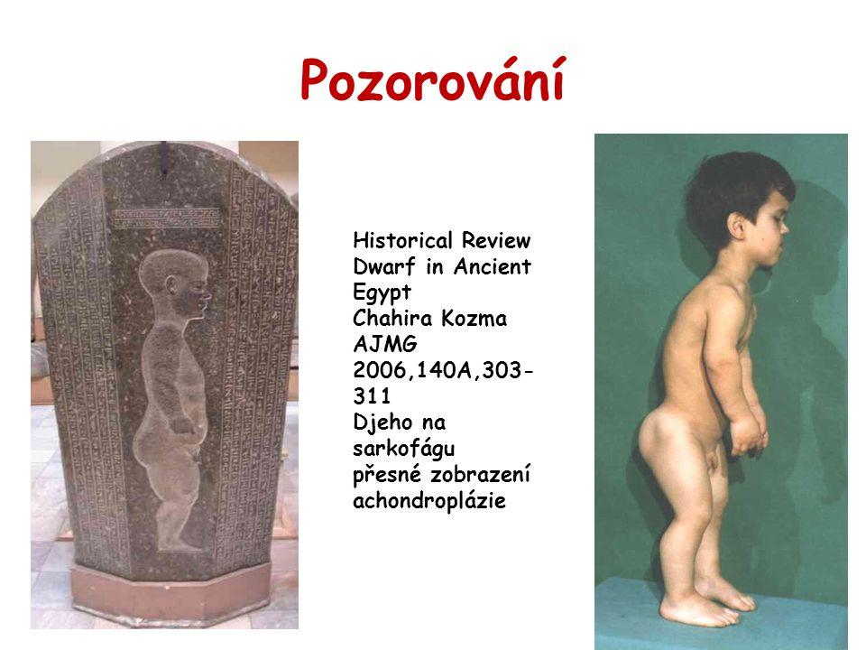 Pozorování Historical Review Dwarf in Ancient Egypt Chahira Kozma