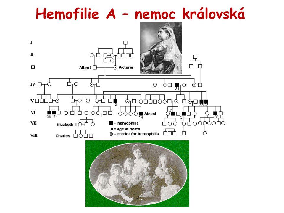 Hemofilie A – nemoc královská