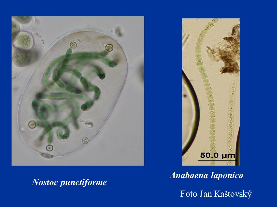 Anabaena laponica Nostoc punctiforme Foto Jan Kaštovský
