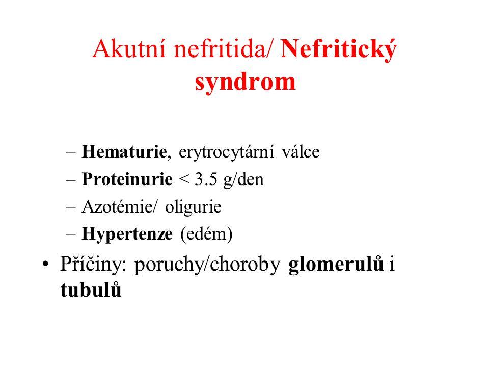 Akutní nefritida/ Nefritický syndrom
