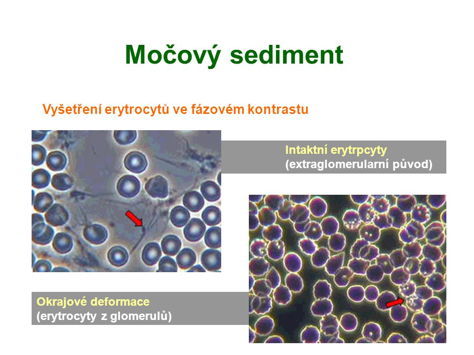Močový sediment Vyšetření erytrocytů ve fázovém kontrastu